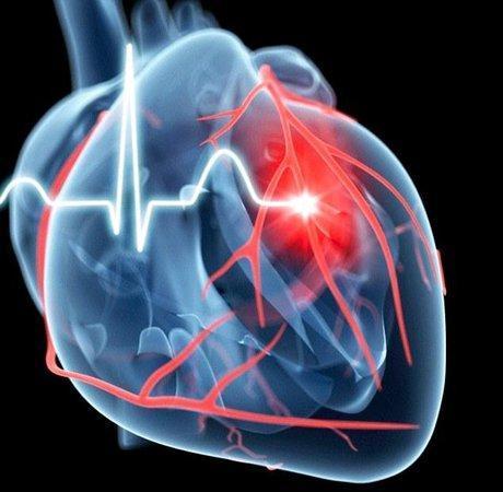 تخمین سن قلب کانادایی ها با ماشین حساب سلامت