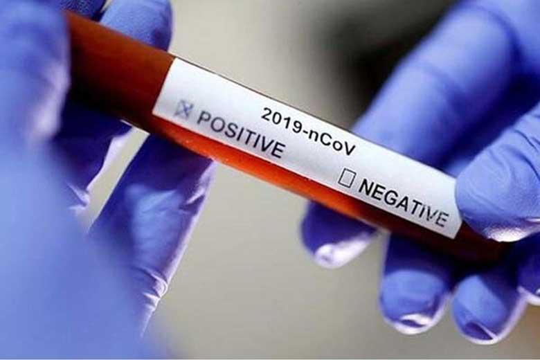 فوت 112 بیمار مبتلا به کرونا در 24 ساعت گذشته ، شناسایی 2206 بیمار جدید مبتلا به کووید 19در کشور